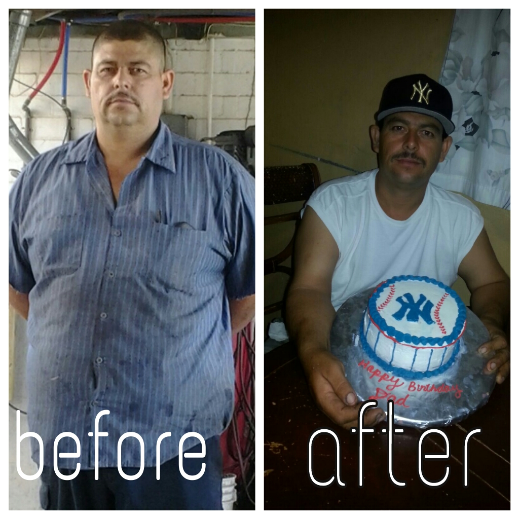 Weight Loss Before After Photos Phoenix Weight Control Dr